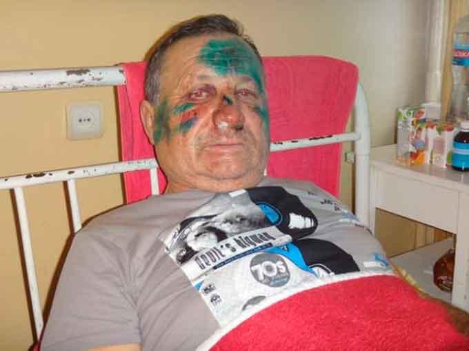 Нардеп вимагає від Авакова взяти на контроль резонансне побиття сільського голови на Черкащині