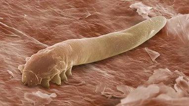 Більше 760 жителів захворіло на паразитози з початку року на Черкащині