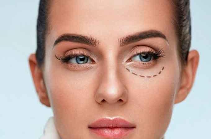 Что такое блефаропластика глаз и какая от нее польза